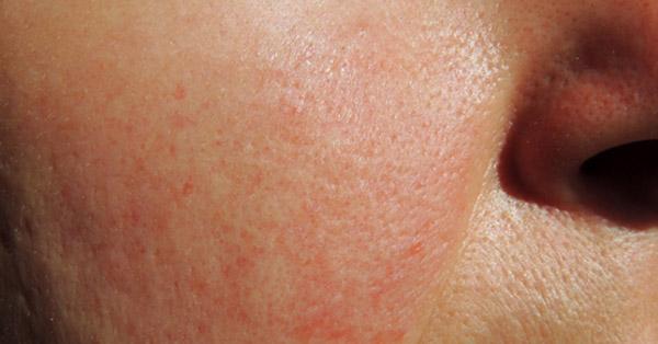 vörös foltok az arcon tünetek fotó pofa a lábán vörös folt