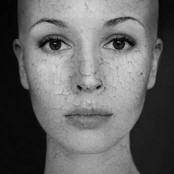 pikkelysömör kezelésének előadása az egész arcát vörös foltok és viszketés borítja
