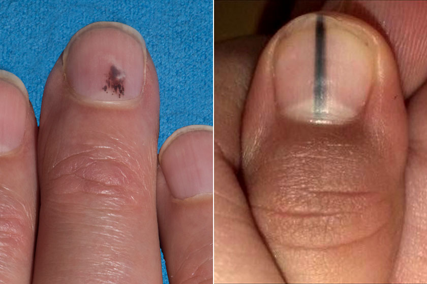 vörös foltok jelentek meg a kezek alatt a bőr alatt