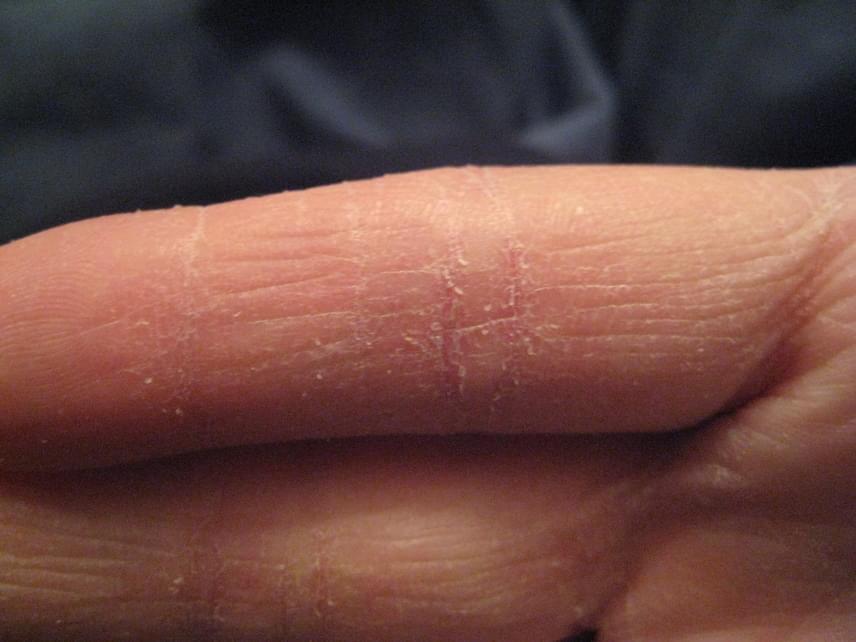 vörös foltok jelentek meg az ujjakon és viszkető fotók)