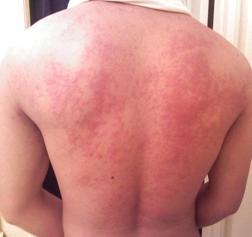 A 7 legbizarrabb bőrbetegség - Megrázó fotókkal!