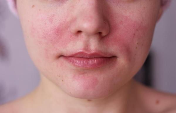 az arcon lévő foltok fürdés után vörösek)