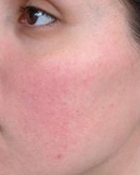 az arcot rendszeresen vörös foltok borítják)