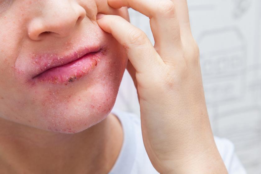 vörös pikkelyes foltok jelentek meg a száj közelében)