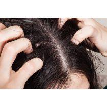 új kenőcsök a fejbőr pikkelysömörének kezelésére