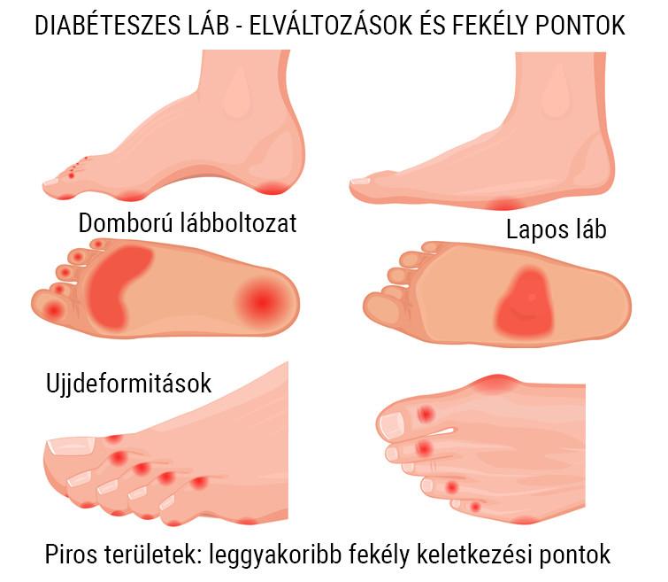 vörös foltok a cukorbeteg lábain