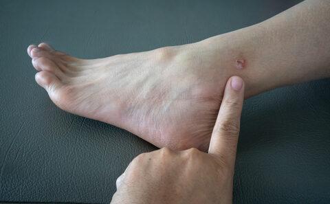 vörös folt a láb alján