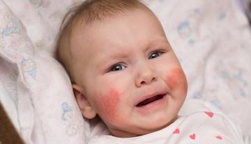 vörös folt peremével az arcán