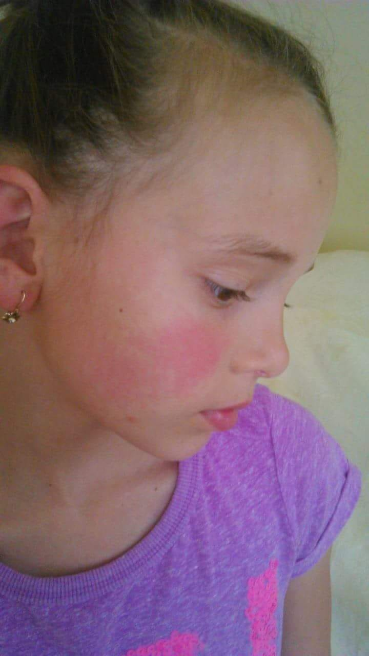 gyomorfájás és vörös foltok az arcon)