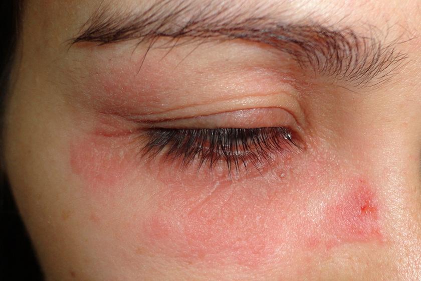 vörös pikkelyes folt a szem sarkában