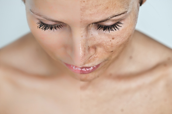 vörös foltok jelentek meg az arcon a hidegtől hogyan lehet megszabadulni a lágyéki pikkelysömörtől
