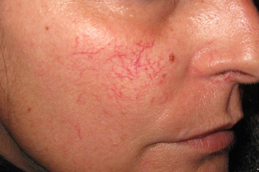 kenőcs az arc piros foltjai fotó)
