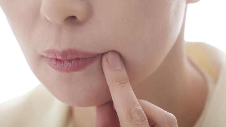 vörös pikkelyes foltok jelentek meg a száj közelében