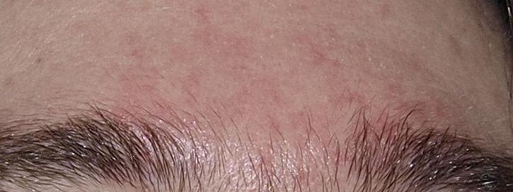 vörös foltok az arcbőrön hámló)