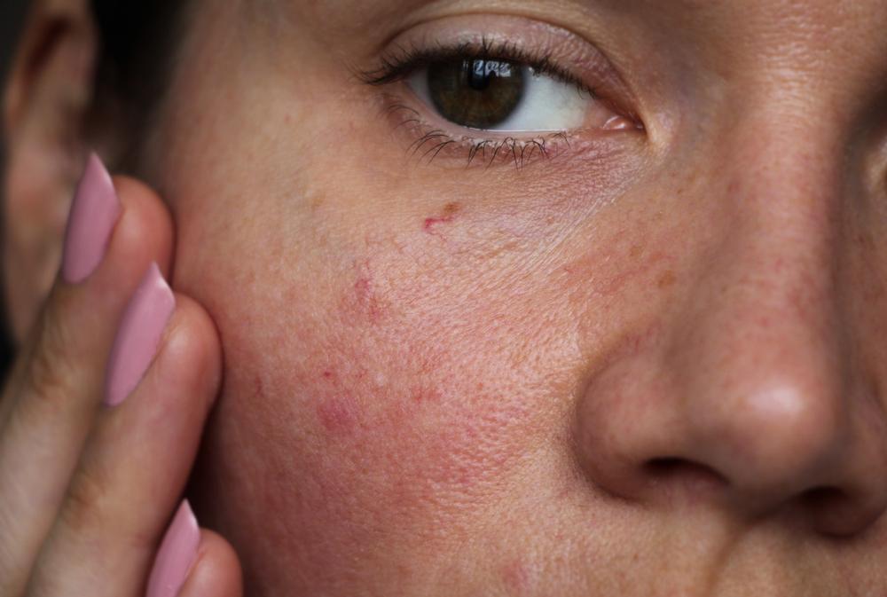 kitörések az arc bőrén vörös foltok formájában felnőtteknél