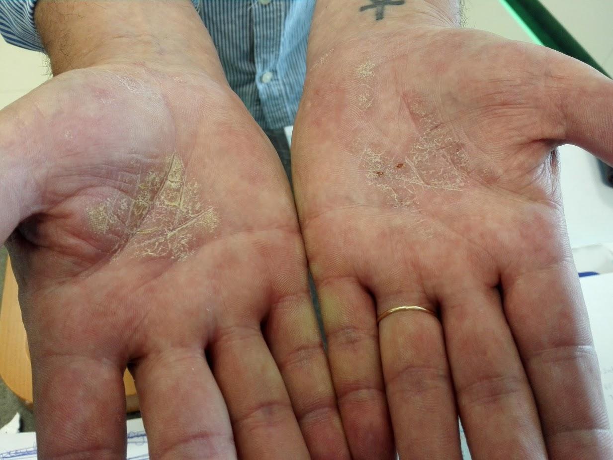 pikkelysömör hogyan lehet eltávolítani a vörös foltokat vörös foltok a bokánál lévő lábakon