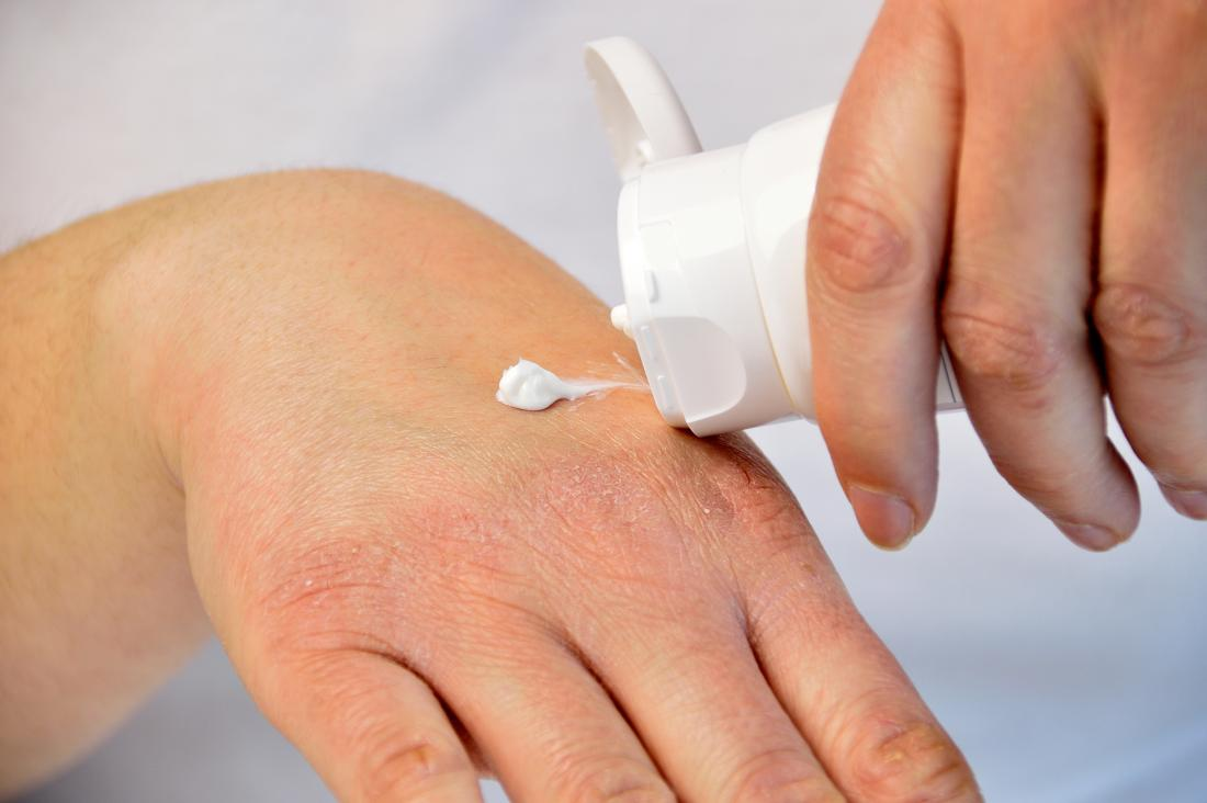 Ekcéma vagy pikkelysömör? Képeken a leggyakoribb bőrbetegségek - Egészség | Femina