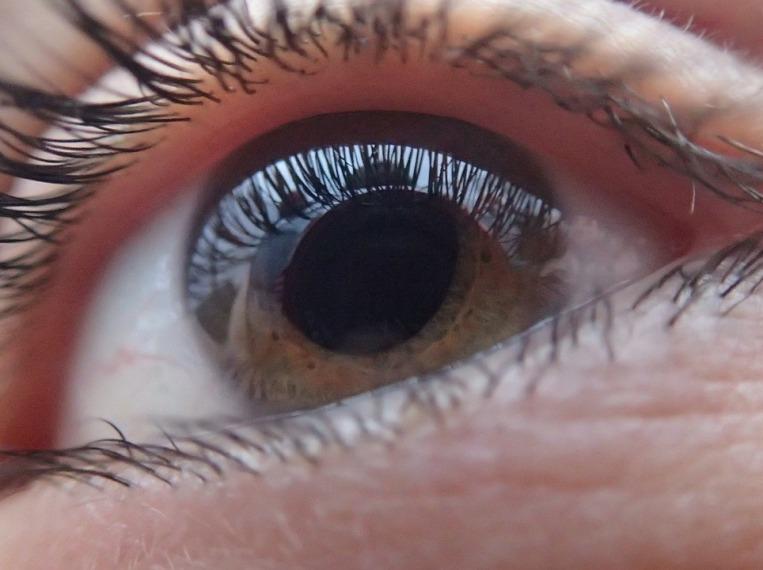Vörös foltok a szemhéjon - Rövidlátás -