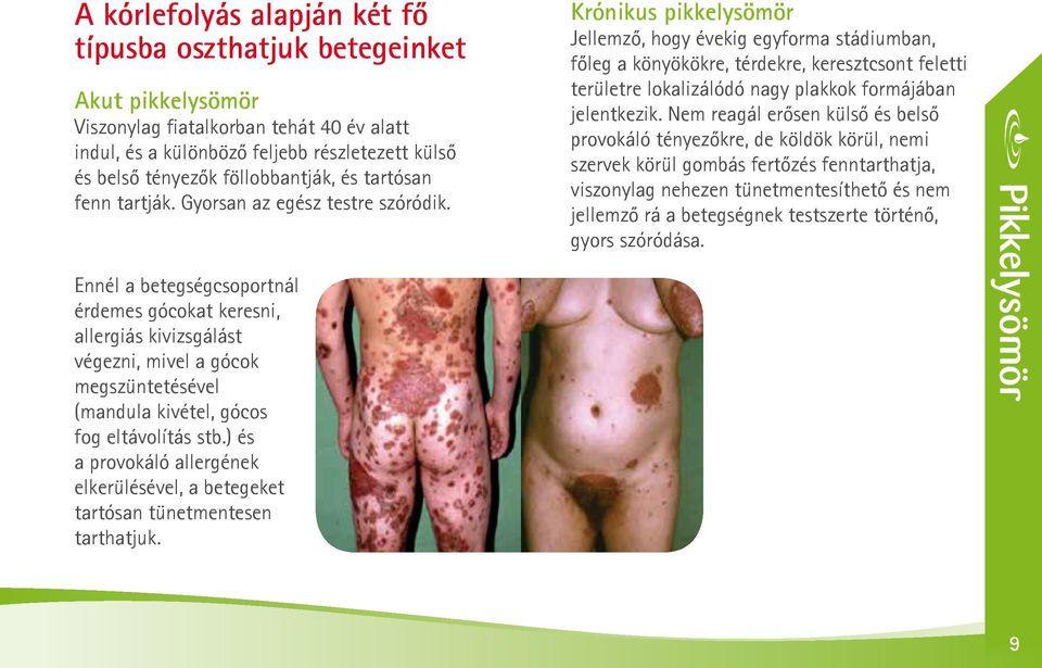 hogyan kell kezelni a pikkelysömör dermovate
