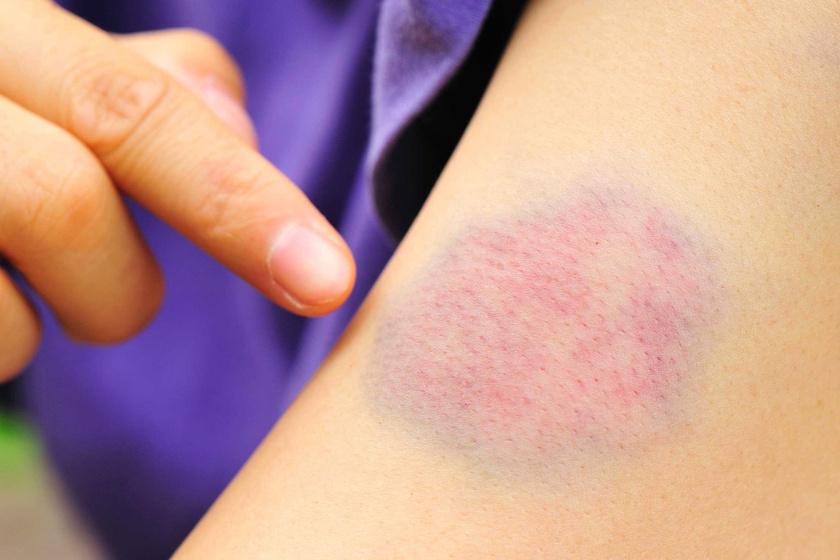 miért jelenik meg egy piros folt a kézen olcs gygyszerek pikkelysömörre a testen