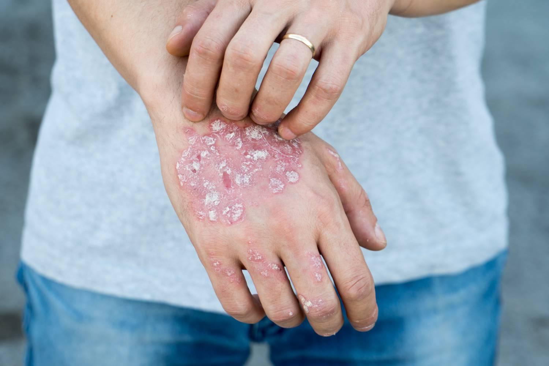 pikkelysömör okai a betegsg s kezelse