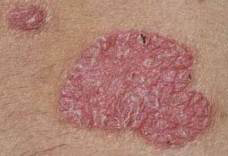 pikkelysömör és kezelések hogyan lehet gyógyítani egy piros foltot a lábadon