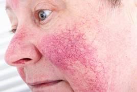 vörös foltok az arcon fájás után hogyan rendelhet spray-t pikkelysömörhöz