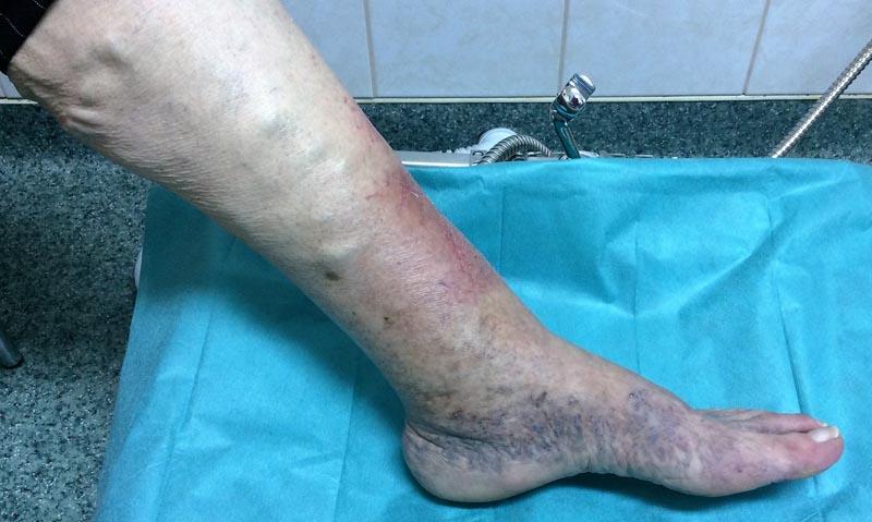 vörös foltok a bokánál lévő lábakon)