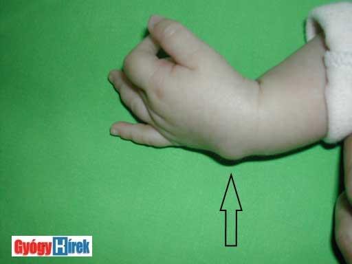 milyen lámpával kezelik a pikkelysömör a test bőrén vörös foltok viszketnek
