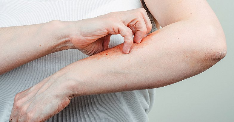 e-vitamin a pikkelysmr kezelsben
