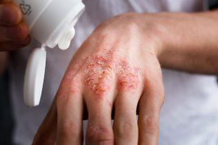 népi gyógymódok pikkelysömörre a kezeken vörös foltok kézrázás után