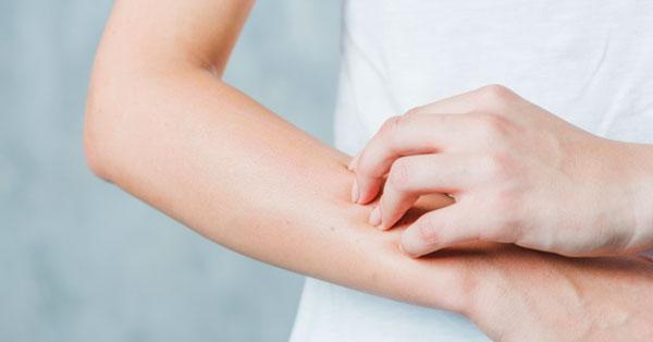 a kezén vörös folt viszket, mint kezelni)