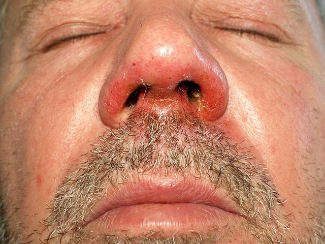 vörös foltok az orr alatt hogyan lehet eltávolítani)