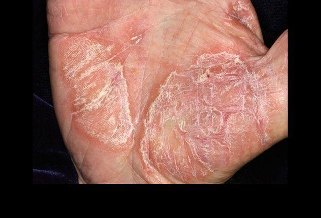hepatitis pikkelysömör kezeléssel
