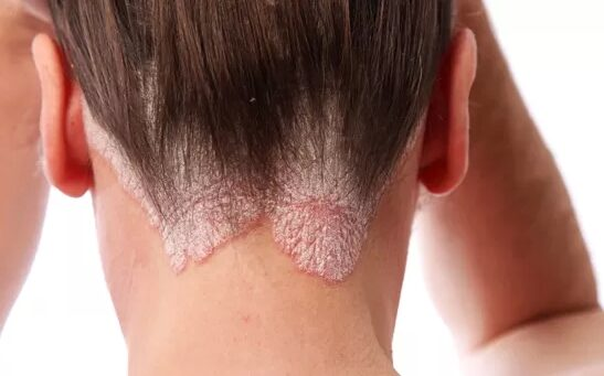 hogyan lehet meggyógyítani egy arcot a pikkelysömörtől