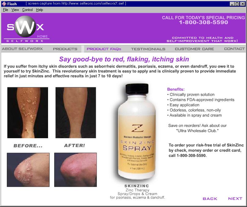 spray skin cap from psoriasis reviews)