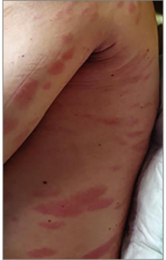 vörös folt a felnőtt karján
