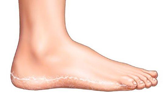 vörös lábak, amelyek zúzódásoknak tűnnek