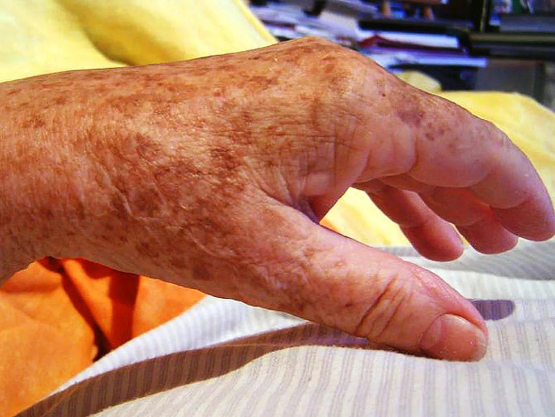 mit mondanak a kezeken lévő piros foltok
