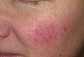 vörös foltok az arcon tünetek fotó