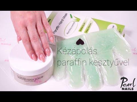 paraffin pikkelysömör kezelése)