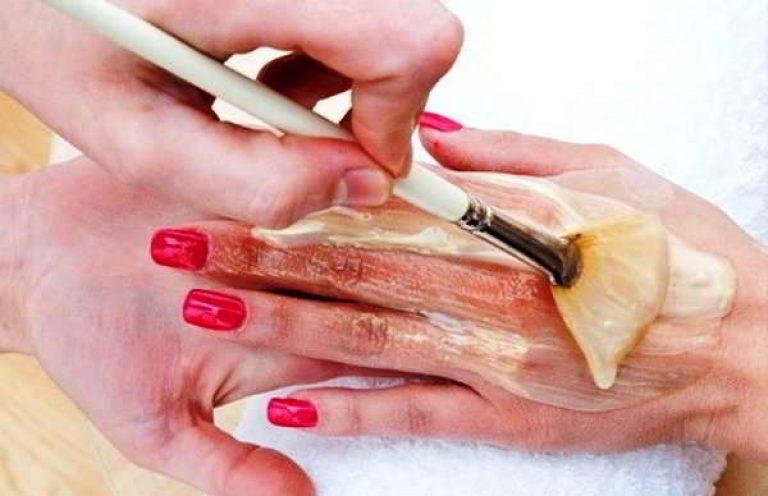 népi gyógymódok pikkelysömörre a kezeken pikkelyes versicolor hogyan kell kezelni