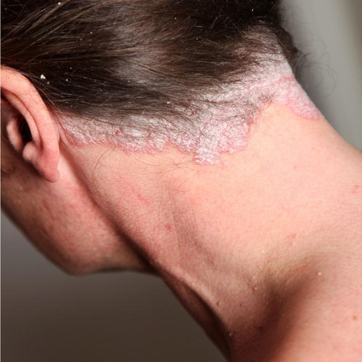 a bőrt vörös foltok és viszketés borítja, mint kezelni hogyan lehet pikkelysömör gyógyítani intim helyeken
