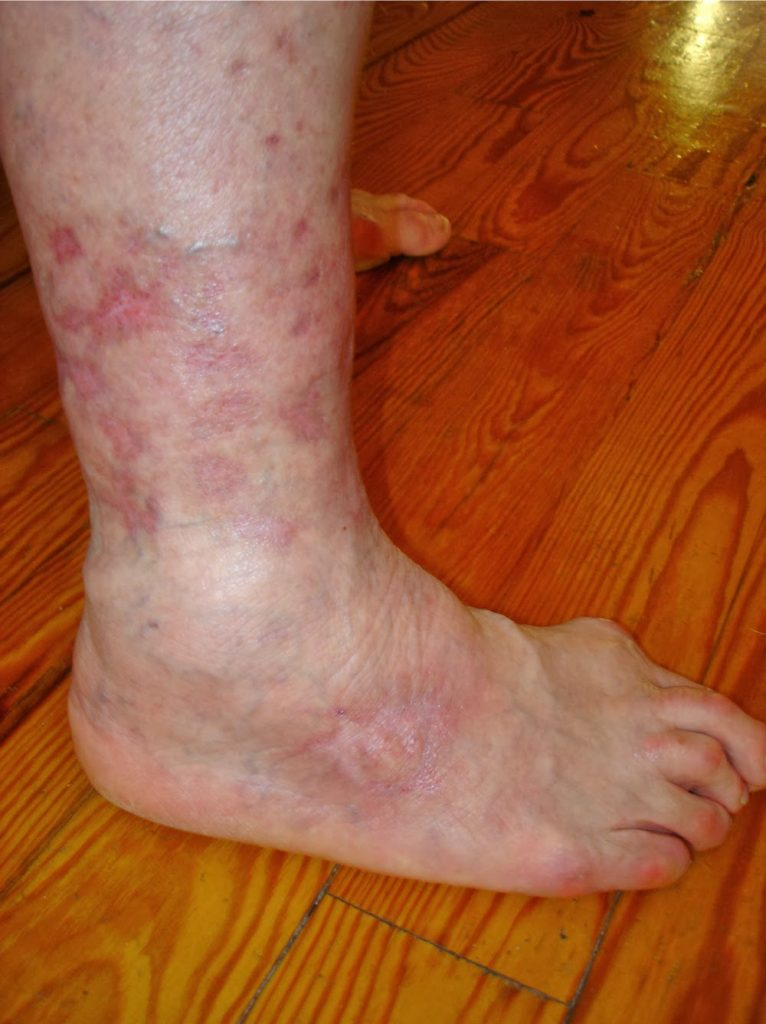 burdenko pikkelysömör kezelése kerek piros folt a kéz bőrén