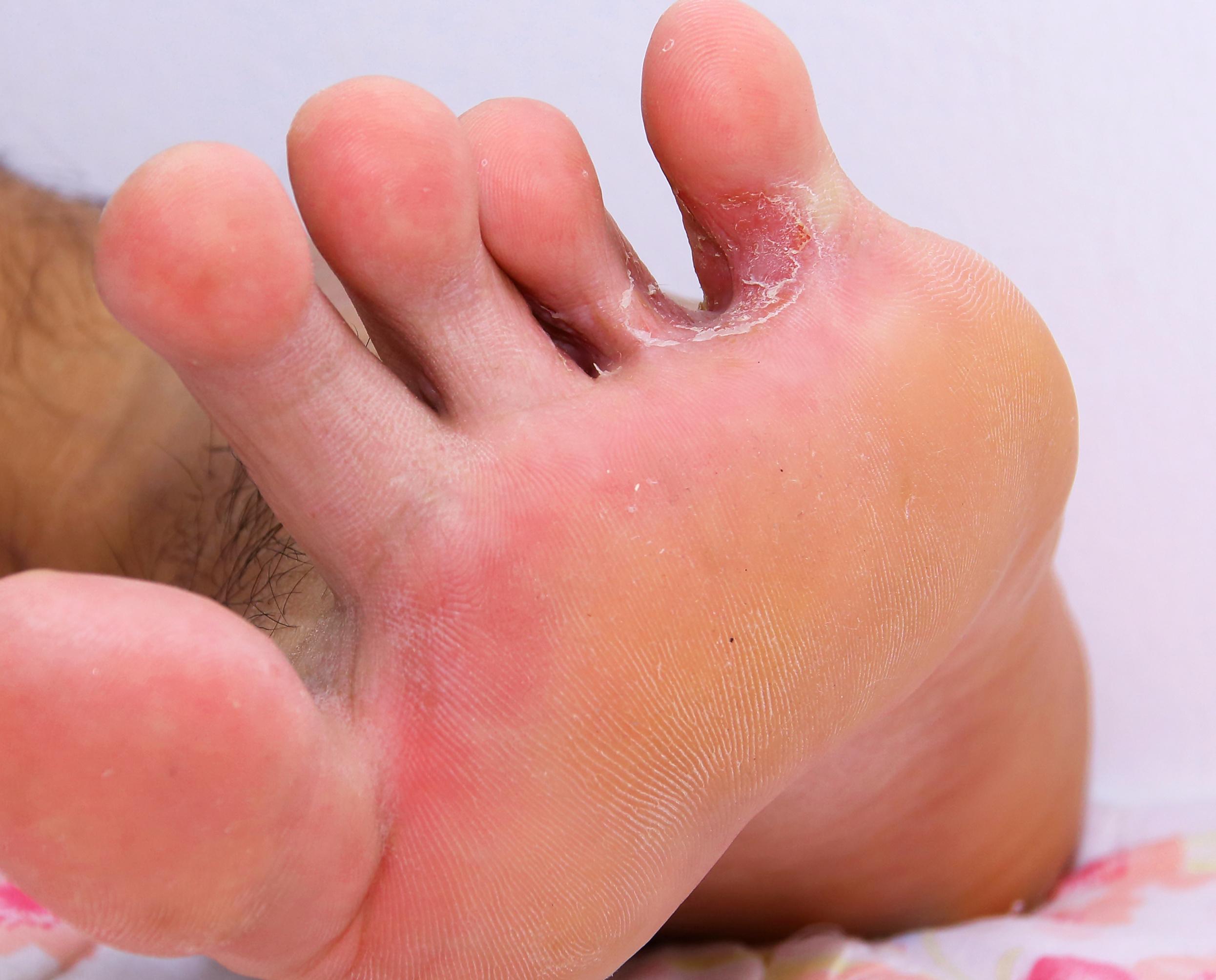vörös durva folt a lábán