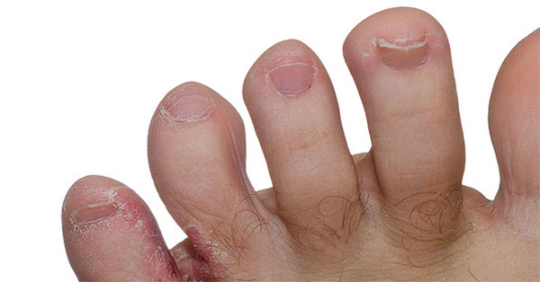 vörös durva folt a kezén viszket