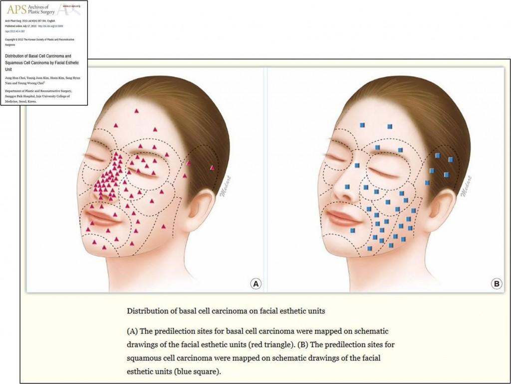Dermatofibroma (fibróma) tünetei és kezelése