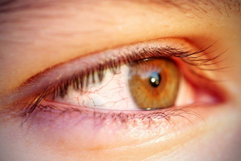 piros foltokkal nézzen szembe, mit tegyen