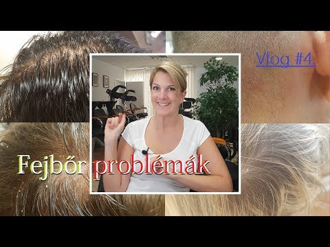 népi gyógymódok kezelése a fejbőr pikkelysömörére)