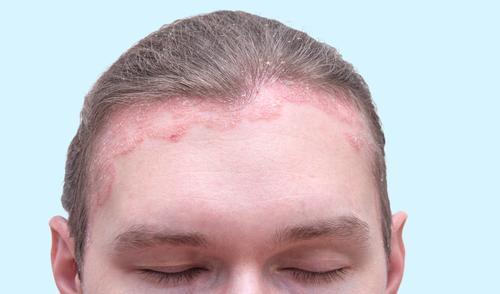 vörös duzzadt folt a bőr fotóján psoriasis worse after giving birth